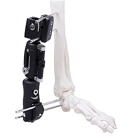 Ankle Joint External Fixator in PEEK
