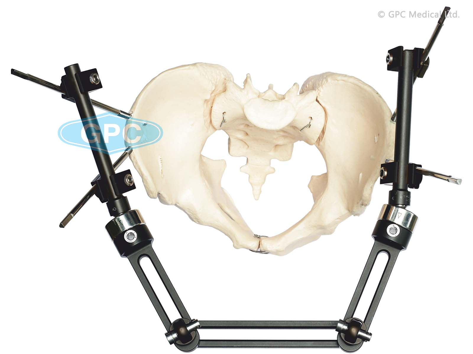exHEAL Pelvic Fixator System